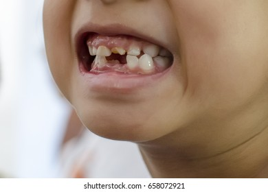 Young girl showing off her missing milk tooth (teeth), close up portrait. Childhood healthcare, healthy changing teeth concept.