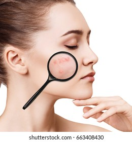 Young girl shows acne with magnifying glass.