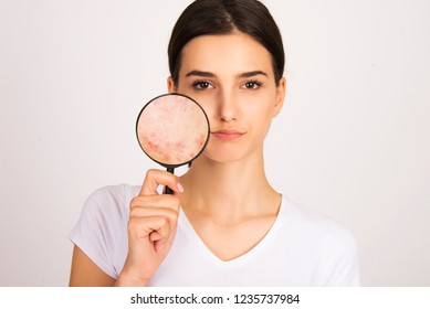 Young girl unhappy with having skin problems. holding magnifier face skin close up