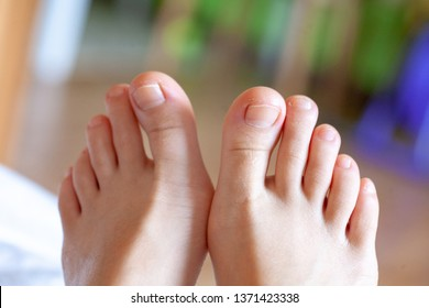 young girl's toes are healthy and beautiful. Well-groomed toes. Concept for medical articles and ointments - the image of the toes and feet. Image of legs with space for inscriptions and advertising.