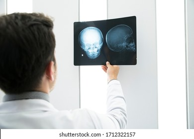 Young healthcare professional looking x-ray of the patient's skull