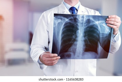 Young male doctor examining x-ray on white
