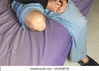 Young man with amputated leg sitting in hospital bed