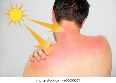 young man with a bad sunburn on his back