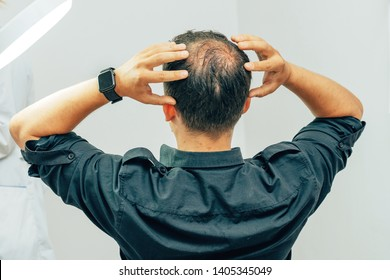 A young man with a bald spot in the office of a trichologist cosmetologist. Bald on a man's head. Male pattern baldness. Fighting hair loss in men.