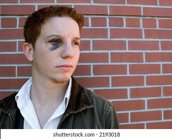 Young man with black eye that is starting to heal