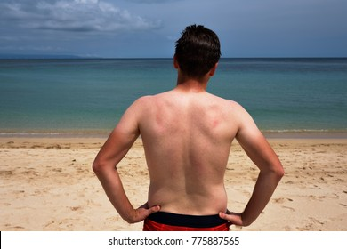 A young man with a funny tan from a T-shirt is standing on the ocean and looks at the clear blue sea. Concept of good vacation
