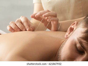 Young man getting acupuncture treatment, closeup