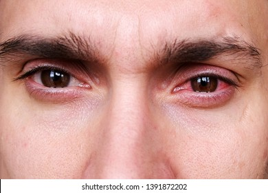 Young man has a red eye caused by welding torch. Flash burn (painful inflammation of the cornea) called 'welder's flash' or 'arc eye'. Eye injuries and irritations. Close up