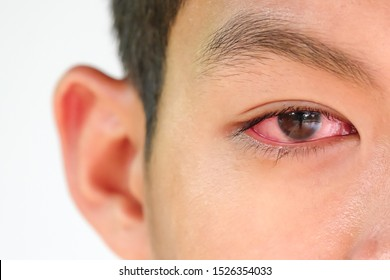The young man has red eye inflammation,red eye, Conjunctivitis or irritation of sensitive eyes.