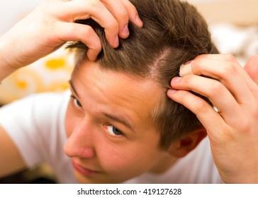 Young man having periodical hair loss and hair loss.