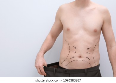 Young man with marks on belly for cosmetic surgery operation on light background