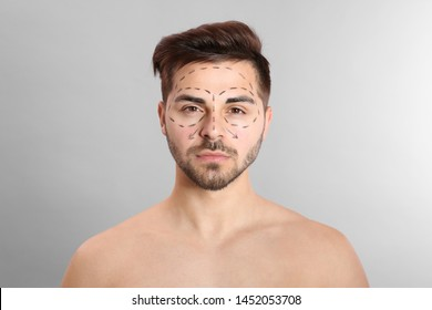 Young man with marks on face for cosmetic surgery operation against grey background