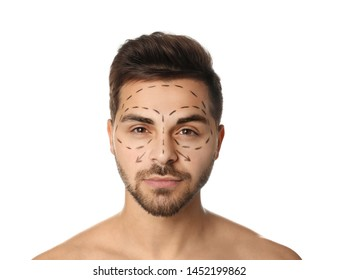 Young man with marks on face for cosmetic surgery operation against white background