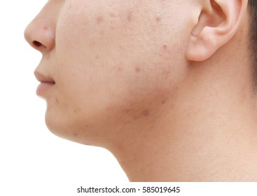 Young man with problem skin on white background, closeup