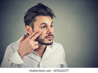 Young man pulling down eyelid checking his eye looking in mirrow feels unwell has black circles