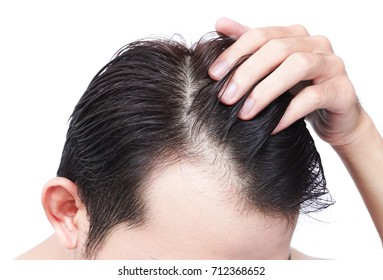 Young man serious hair loss problem for health care shampoo and beauty product concept