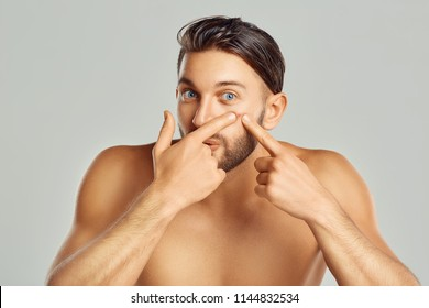 Young man squeezing her pimple, removing pimple from her face. Man skin care concept. Acne spot pimple spot skincare beauty care male pressing on skin problem face.