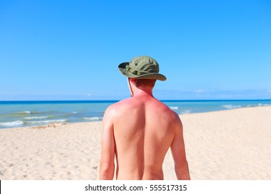 Young man standing on the beach with sunburned shoulders