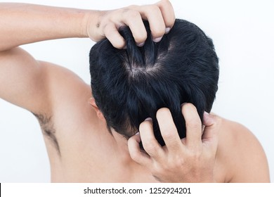 Young man suffering from itching her head, Itching scalp.