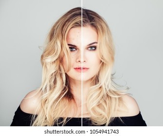 Young Model Woman with Skin Problem and Clear Skin Face Closeup Portrait. Unhealthy and Healthy Skin After Treatment. Facial Treatment, Medicine and Cosmetology Concept