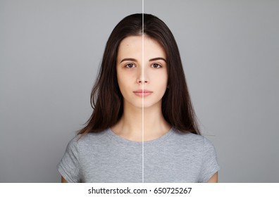 Young Model Woman with Skin Problem. Female Face, Healthy and Unhealthy. Facial Treatment, Skin Care, Medicine and Cosmetology Concept