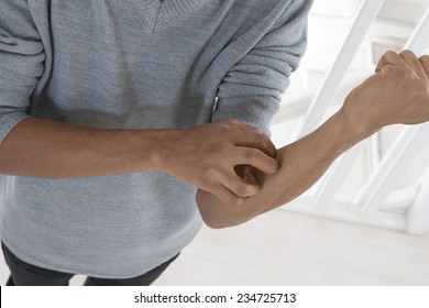 young mulatto man with itching arm