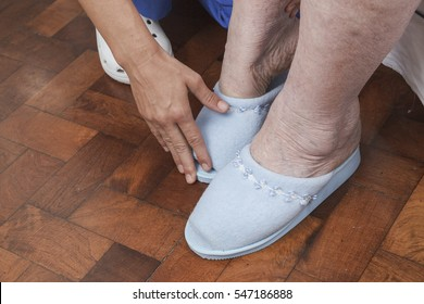 Young nurse assisting or examining an elderly woman with chronic pain in her feet and swollen ankles