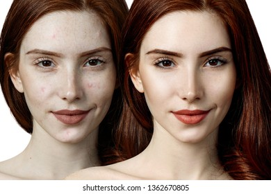 Young redhead woman before and after skin treatment and makeup.