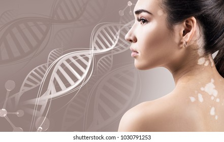 Young sensual woman with vitiligo disease in DNA chains