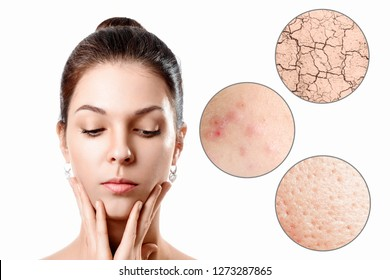 Young woman with acne, dry skin, black dots skin in zoom circle . Skin care concept. Young girl, beauty portrait. Close-up.
