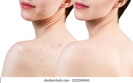 Young woman with acne on shoulders and back before and after treatment. Over white background.