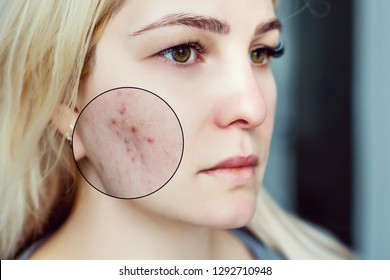 Young woman with acne skin and magnifying glass