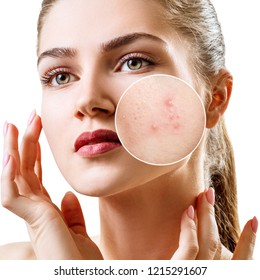 Young woman with acne skin in zoom circle. Isolated on white
