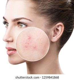Young woman with acne skin in zoom circle. Over white background.