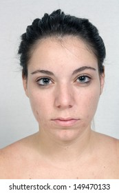 A young woman with acne, unretouched.