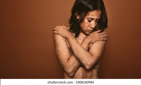 Young woman affected with vitiligo in studio. Female with bad tan problem standing on brown background.