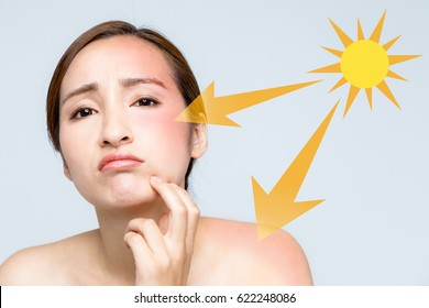 young woman with a bad sunburn on her face