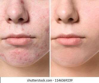 Young woman before and after acne treatment, closeup. Skin care concept