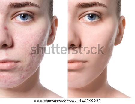 skincare edit before and after