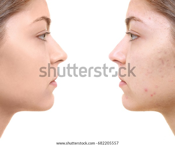 Foto stock de Young Woman Before After Acne Treatment