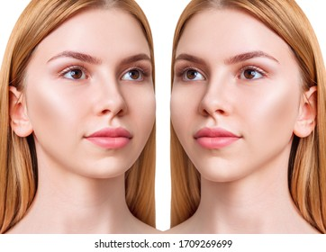 Young woman before and after chin correction. Over white background.