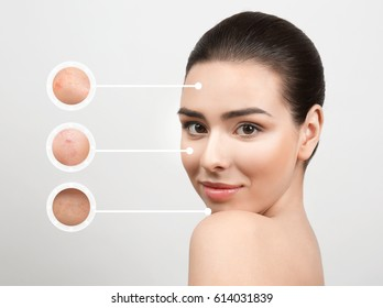 Young woman before and after cosmetic procedure on gray background