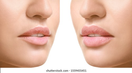 Young woman before and after lip enhancement on white background, closeup
