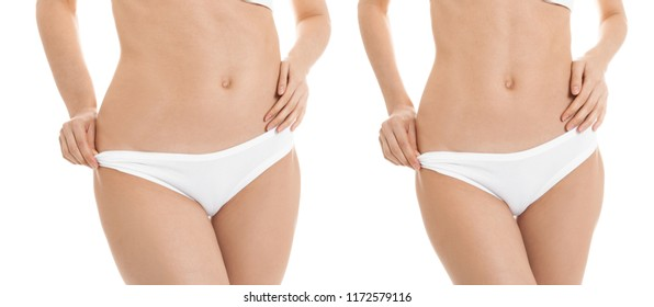 Young woman before and after liposuction operation on white background, front view. Cosmetic surgery