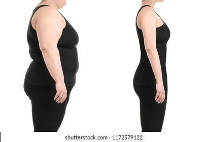 Young woman before and after liposuction operation on white background, side view. Cosmetic surgery