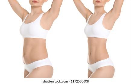 Young woman before and after liposuction operation on white background. Cosmetic surgery