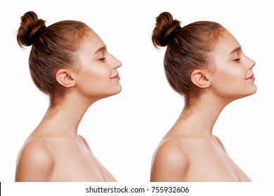 Young Woman Before and After Operations on the Nose, Rhinoplasty. Isolated on White Background. Plastic Nose Surgery Concept