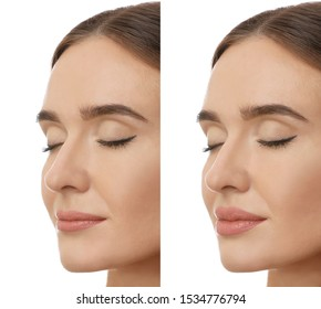 Young woman before and after plastic surgery on white background