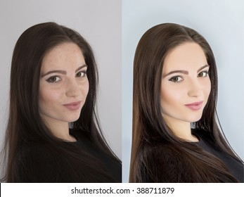 Young woman,  before and after retouch, beauty treatment.  Before and after cosmetic operation.  anti-age therapy, removal of acne, retouching.